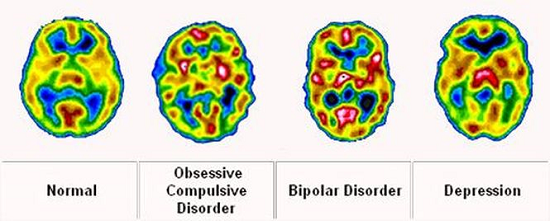 ft-how-to-tell-the-difference-between-bipolar-disorder-and-depression-neuroinnovations